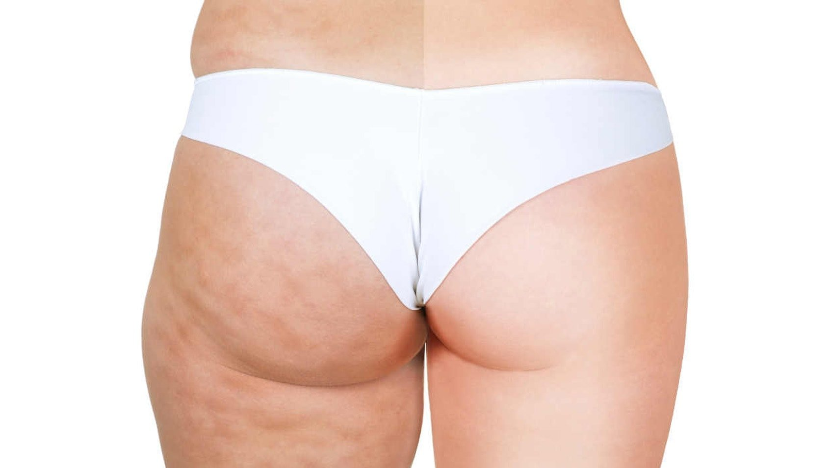 10 Cibi Da Evitare Per Combattere La Cellulite